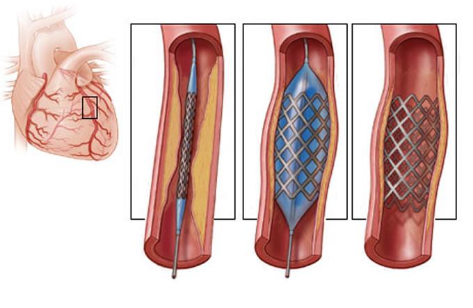 Koronarni stent