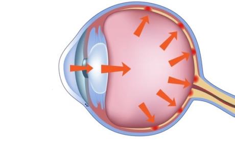Glaukom je najvažnije na vrijeme prepoznati