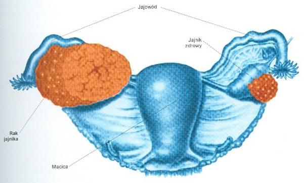 Novi krvni test pospješuje borbu protiv raka jajnika