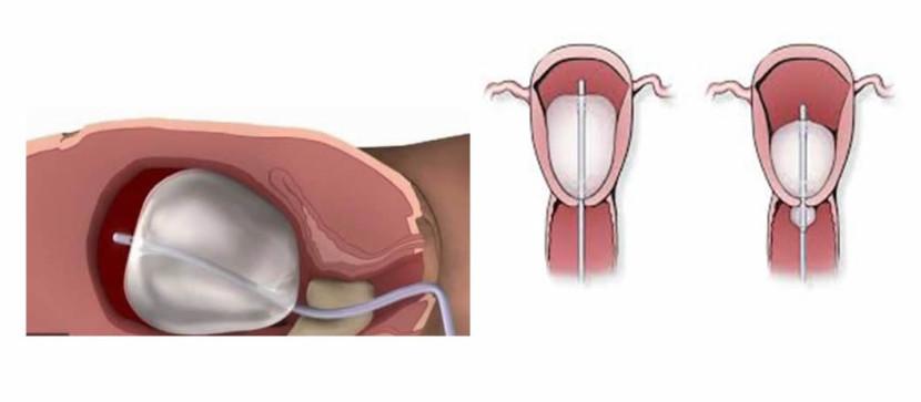 Tamponada maternice