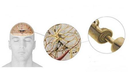 Degenerativne bolesti nervnog sistema