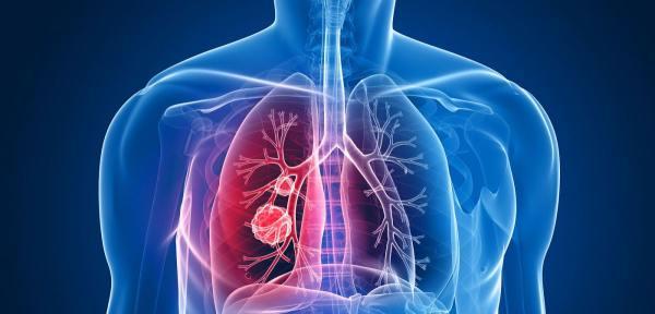 Analizom daha moguće otkriti rak pluća