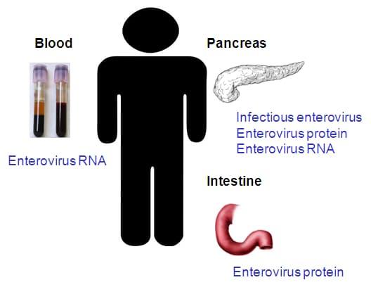 Enterovirus povezan sa nastankom dijabetesa tipa 1