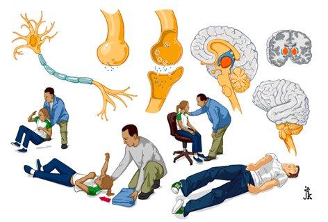 Epileptički status i liječenje epilepsije