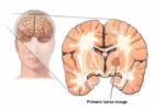 Intrakranijalni tumori
