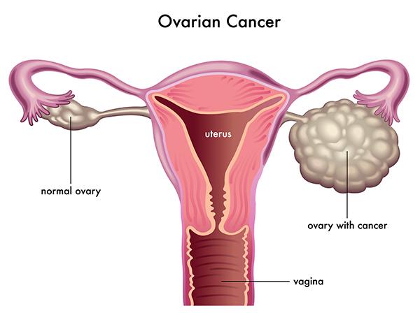Strategija rane detekcije karcinoma jajnika