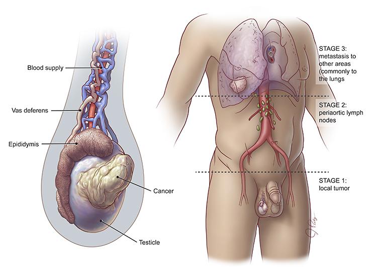 Karcinom testisa