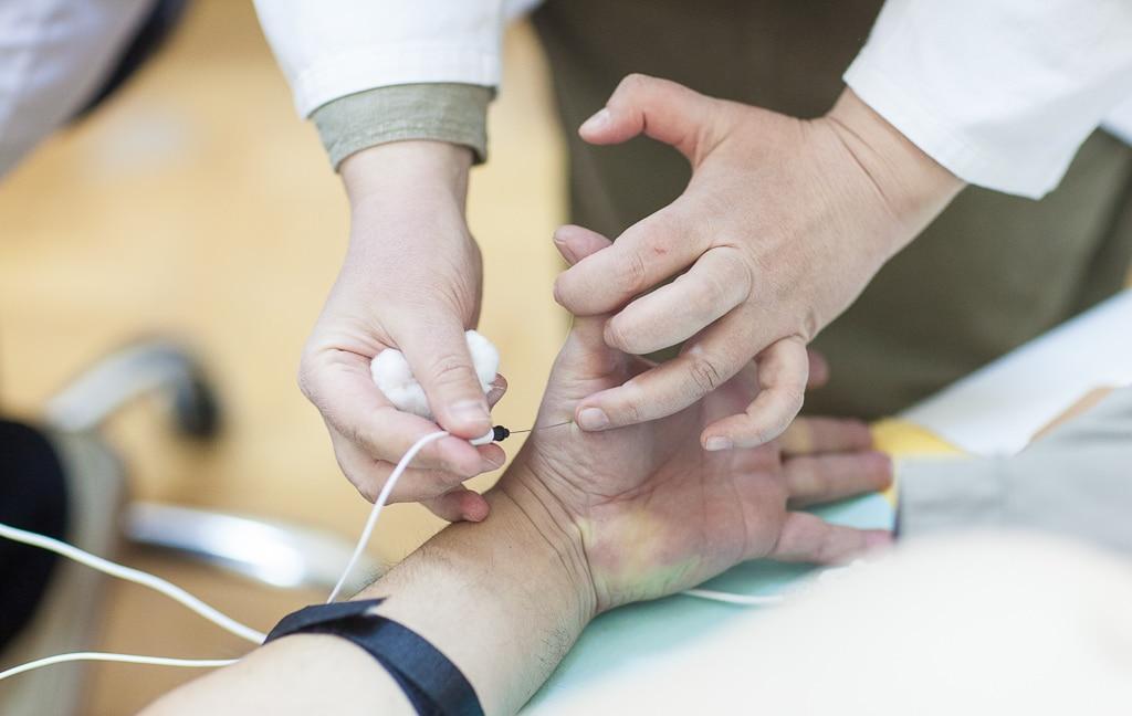 Metode pretraživanja perifernog nervnog sistema