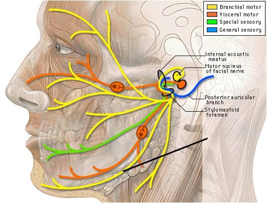 Neuralgija trigeminusa