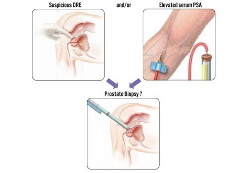 PSA biopsija