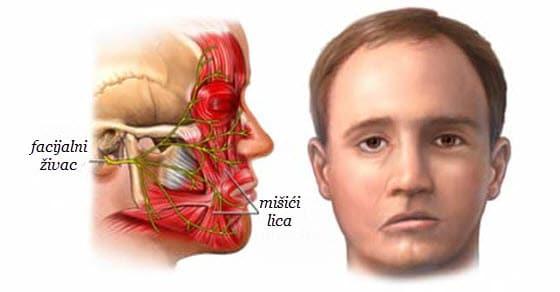 Paraliza nervus facialisa