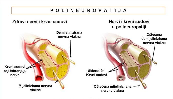 Polineuropatije
