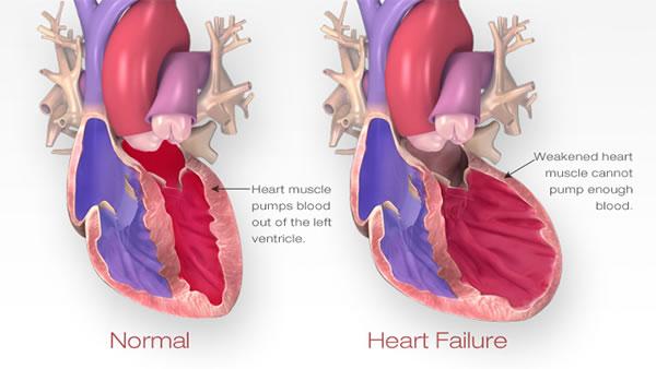 Refraktorno zatajenje srca