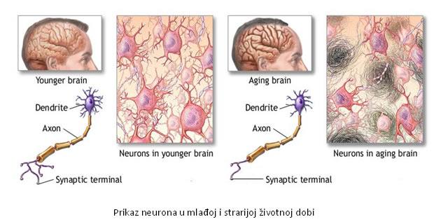 Starenje mozga