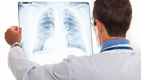 Virusna upala pluća