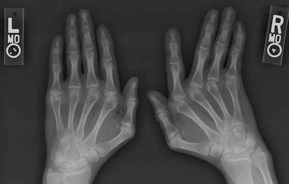 Kristalografija i artritis