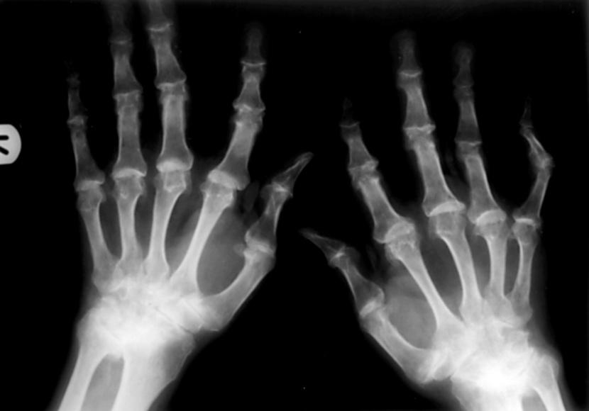Bolest odlaganja kalcijeva hidroksiapatita