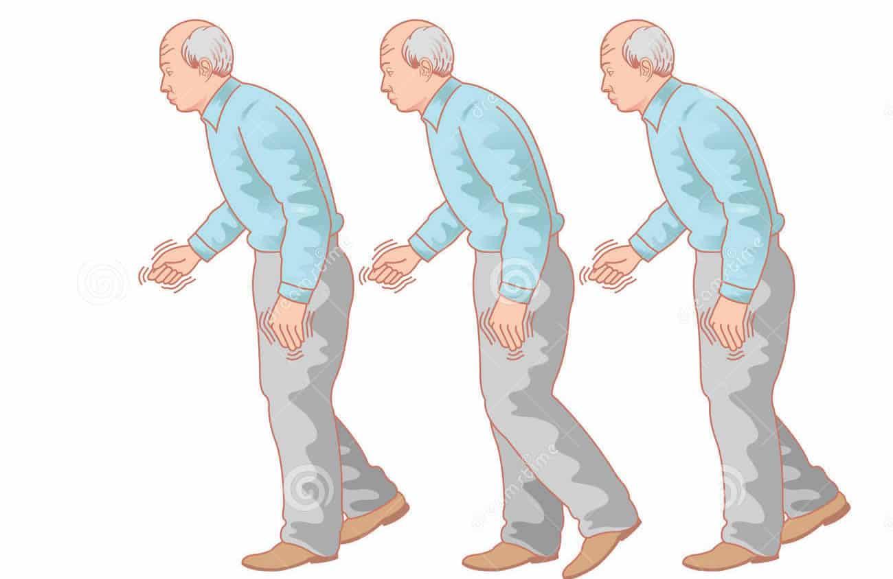Krvni test namjenjen dijagnostici Parkinsonove bolesti