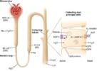 X vezani nefrogeni dijabetes insipidus