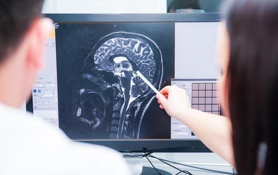 primjenu lasera prilikom odstranjivanja tumora mozga